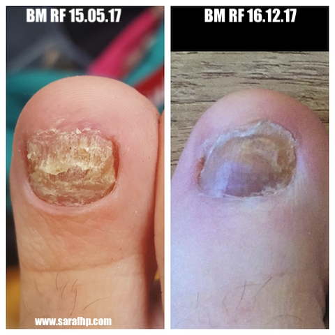 BM RF 15 05 17 - 16 12 17 comparison photo