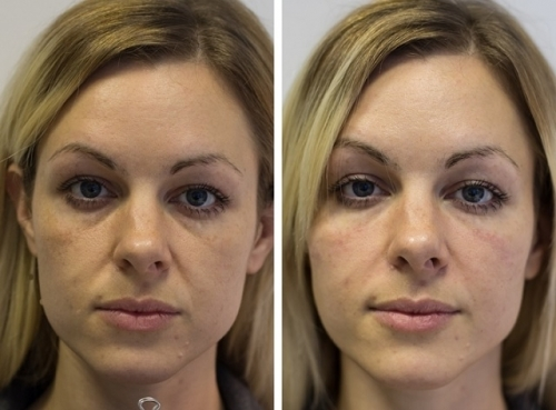 Before And After Real Life Airbrushing