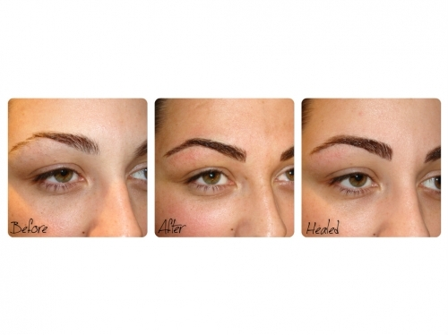Semi Permanent Eyebrows By El Truchan Before After Healed