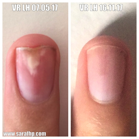 VR LH 4th dig 07.05.17 - 16.11.17 comparison photo