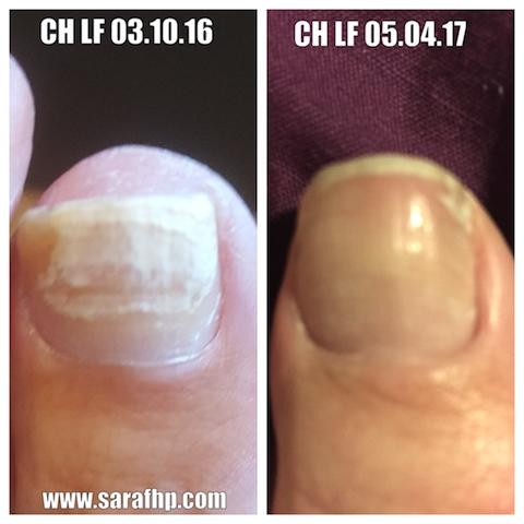 CH Lf 03 10 16 - 05 04 17 comparison photo