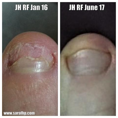 JH RF Jan 2016 - June 2017 comparison photo