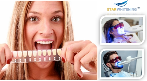Book Teeth Whitening