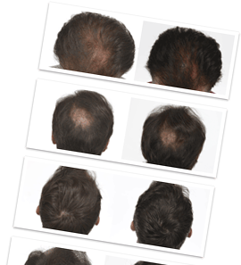 Hair restoration program
