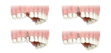 Single Dental Implants